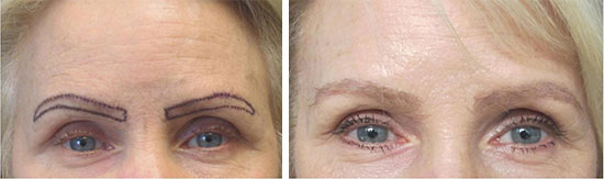 women eyebrow hair transplant pictures