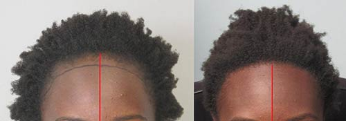 Before and after grafts to repalce area lost by traction alopecia.Dr. behanm is an expert in ethnic hair transplant .
