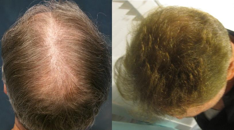 This gentleman had 1913 grafts placed in the midscalp and crown area. Results after 1 session. Procedure performed by Dr. Sean Behnam.