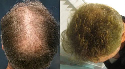 hair-restoration-beverly-hills