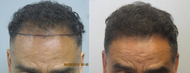 African American FUE hair transplant: This gentleman had 1,232 grafts placed int he frontal hairline. This procedure was performed by the FUE method, where individual grafts were removed one by one and placed int he frontal hairline. Los Angeles hair transplant dr. Sean Behnam