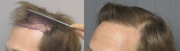 Class 3, thinning. This gentleman had 1,749 grafts placed in the hairline. The left picture shows how thinned the frontal hairline is before the hair transplant. The picture to the right shows how thicker the hairline is after the procedure.
