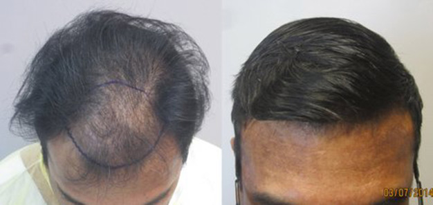 Class 3 thinning: Before and after 1,568 grafts placed in the hairline. Procedure performed by Dr. Sean Behnam MD. hair-transplant-los-angeles4