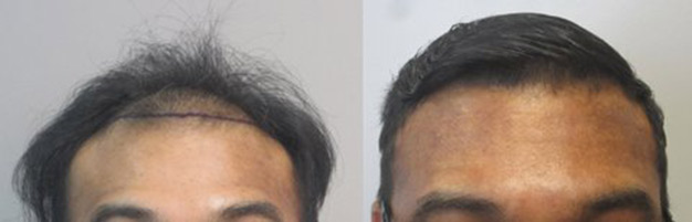 Class 3 thinning: This gentleman had 1,568 grafts placed in the hairline. Right picture shows thinning of the frontal hairline. The left picture taken one year after the procedure shows thickened frontal hairline.