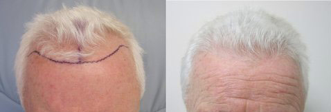 FUE hair transplant pictures