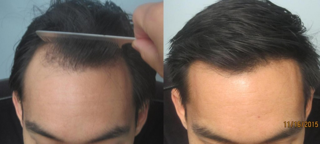 FUE hair transplant 1,441 grafts placed at the hairline and temples. Side view. Please notice how natural the hairline looks. By Dr Sean Behnam