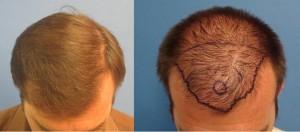 hair restoration LA