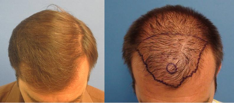 Before and after 2,503 grafts placed from the hairline upto the crown. All done in one session.