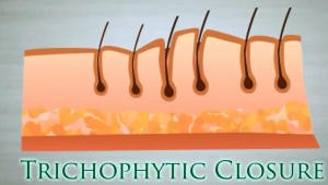 strip hair transplant trichophytic closure