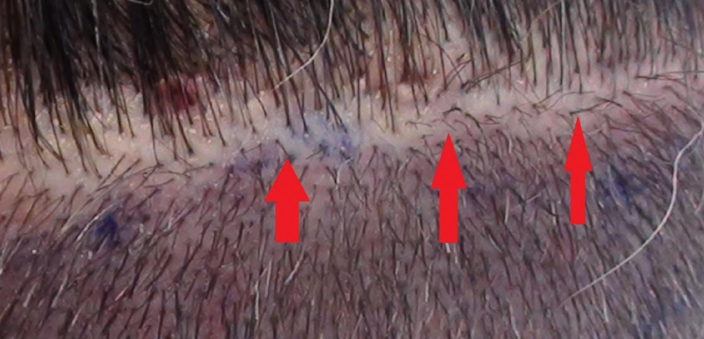 Hair transplant trichophytic closure pictures