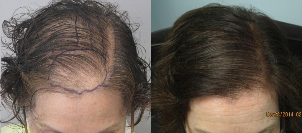 Woman before and after hair transplant