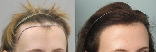 Female hair transplant before and after pics