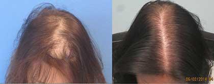 womens-hair-transplant