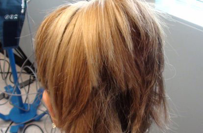 Fue-hair-transplant-los-angeles