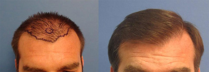 hair transplant in los angeles