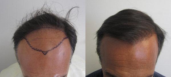 Los Angeles Male Pattern Baldness