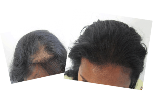 Mild hair loss in the frontal area. Ludwig class 1. About 1,000 grafts were added to the area. By Dr Behnam.