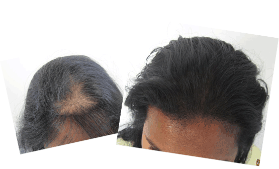 Mild hair loss in the frontal area. Ludwig class 1. About 1,000 grafts were added to the area
