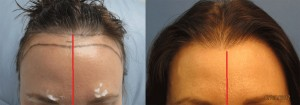 Hair line lowering. Approximately 2,000 grafts were placed to reduce the hairline.