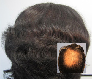male hair transplant and restoration before and after pics