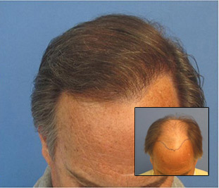 Before and after 2,256 grafts performed all in one session. Class 6. By Dr. Sean Behnam