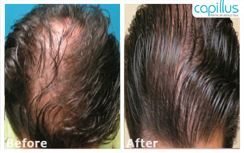 capillus272-before-after-case-2