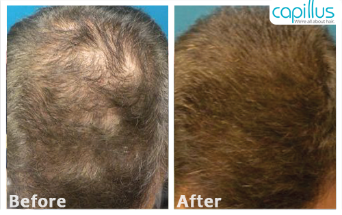 capillus272-before-after-case-6