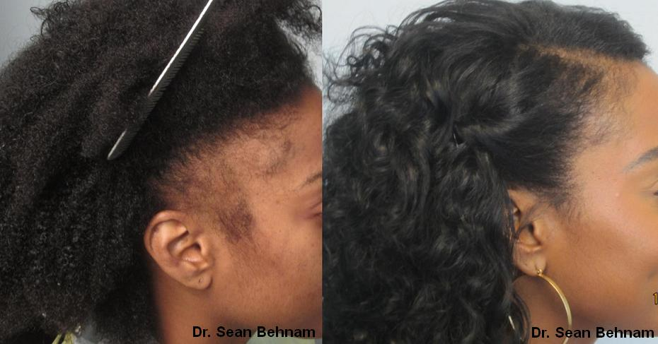 Herbal Hair Loss Treatment For Black Women