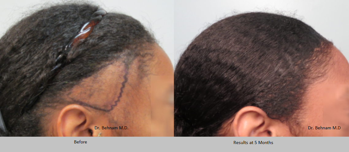 Female African American hair restoration