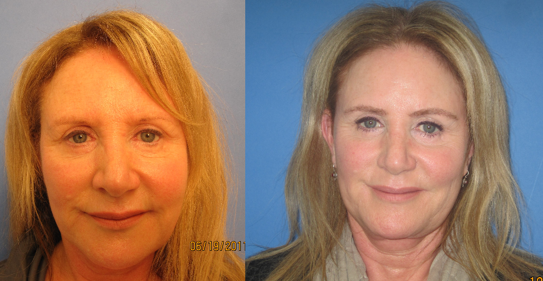 Eyebrow Transplant Los Angeles
