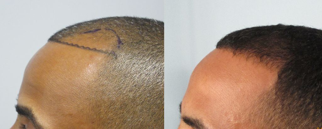 FUE hair transplant African American: (side view)  Patient received 1,123 grafts (2,241 hairs) along the hairline and temples. Results after 1 year.