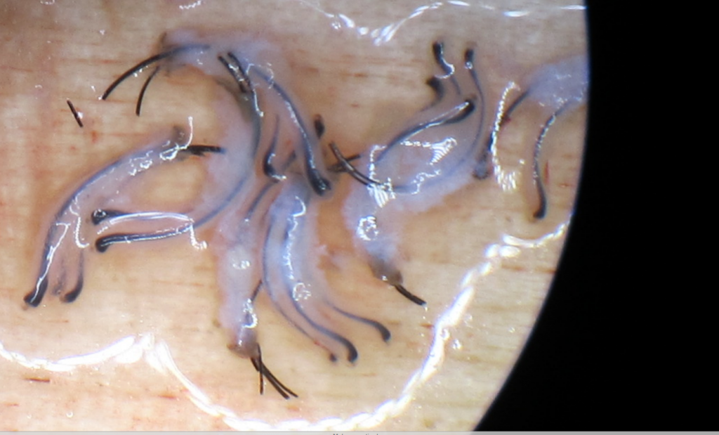African American Hair follicle obtained by the FUE method. Please notice how curly the grafts are. Also, please notice thatthe grafts are not transected. They are fully intact 2 hair and 3 hair follicles. Great tissue around them. FUE performed by Dr Behnam MD ABHRS