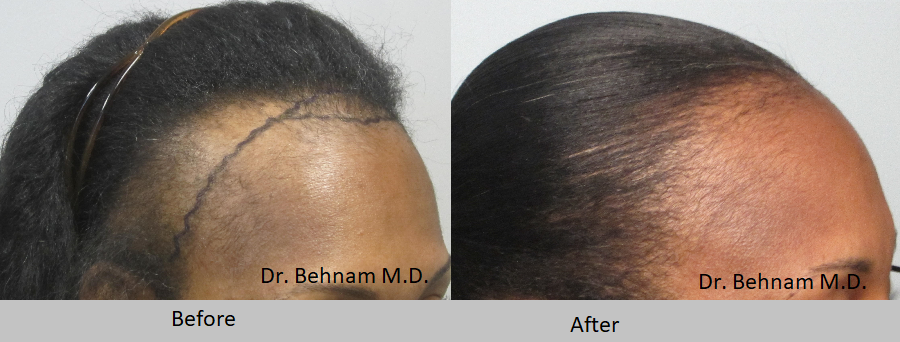 African American Female hair transplant. Grafts are placed along the hairline and temples.