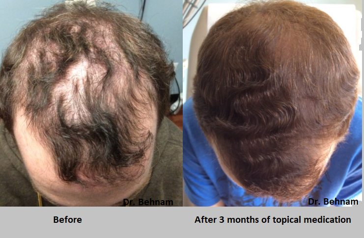 Topical finasteride before and after