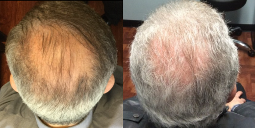 Male patient before and after topical finasteride solution