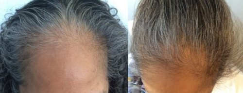 Topical finasteride before and after on woman head and forehead