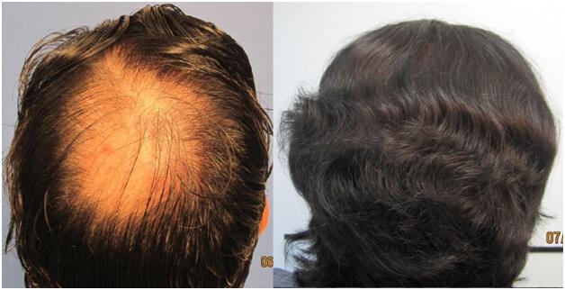 Los Angeles hair loss back of head