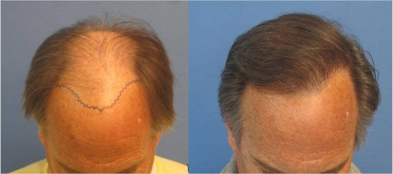 Hair transplant cost and before and after of man