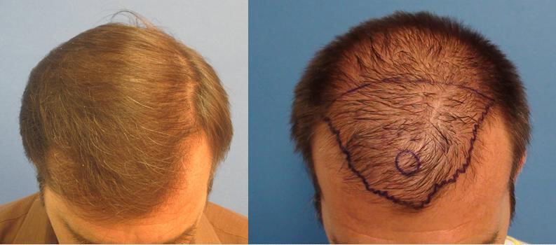 Hair restoration LA cost